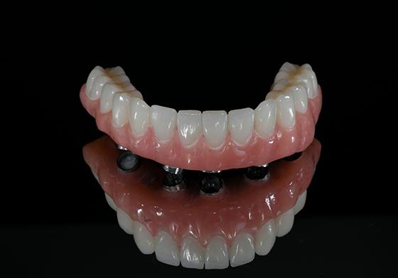 Hybrid Bar Denture